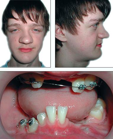 Ключично-черепной дизостоз