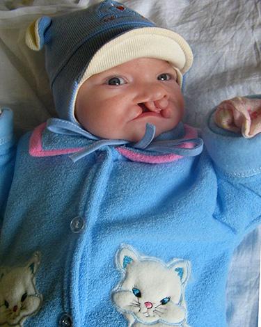 Врожденная расщелина губы и неба также серьезно мешает развитию нормального молочного прикуса.