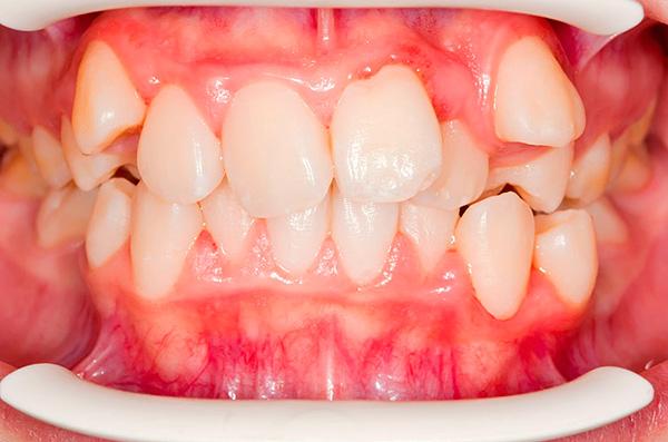 Дистопия зубов (их расположение не на своем нормальном месте).