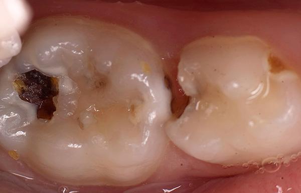 При преждевременной потере жевательного молочного зуба могут произойти негативные изменения в положении соседнего к нему зуба, а также антагониста на противоположной челюсти.
