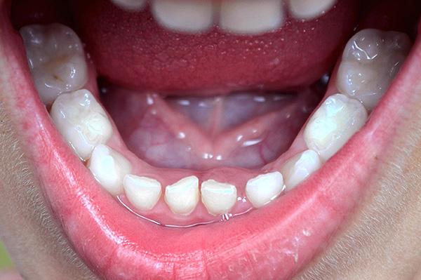 В полном молочном прикусе на нижней челюсти 10 зубов (и столько же на верхней).