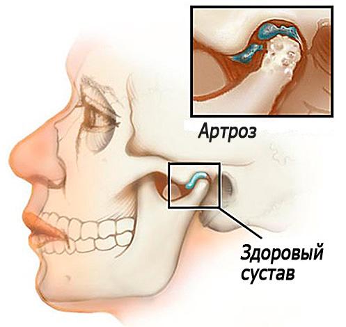 артроз височнонижнечелюстного сустава лечение