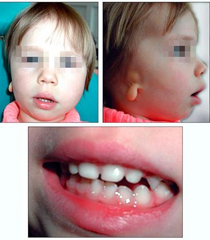 Гемифациальная микросомия (синдром первой и второй жаберных дуг).