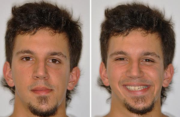 Аномалии прикуса зачастую сопряжены с некоторой асимметрией лица.