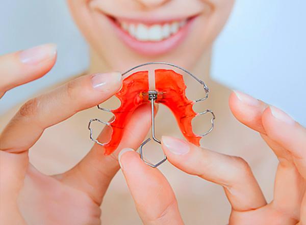 При лечении перекрестного прикуса нередко применяются пластинчатые аппараты с расширяющим винтом.