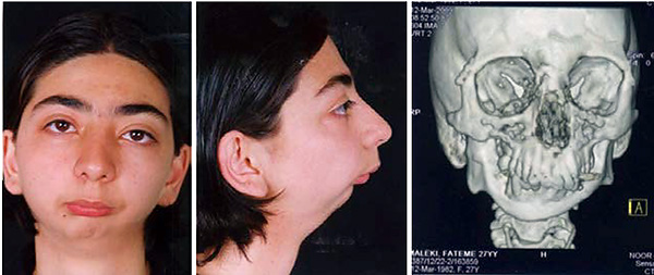 Внешний вид пациента с анкилозом ВНЧС.