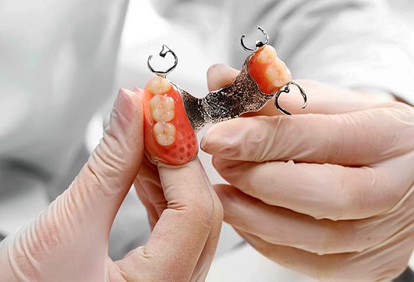 Поговорим о нюансах применения бюгельных протезов при протезировании зубов на верхней челюсти...