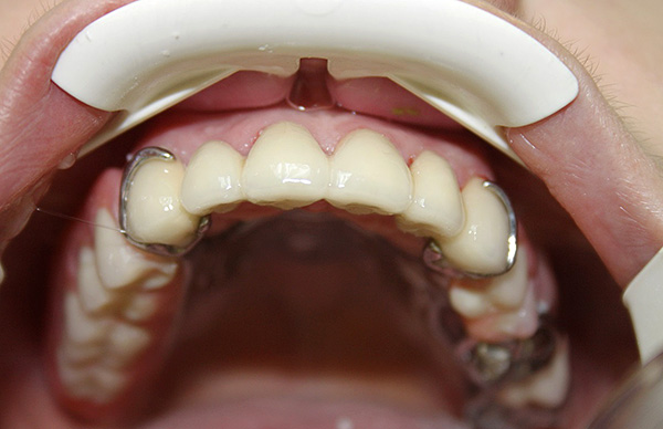 При улыбке кламмеры нередко бывают заметны, что является недостатком данного вида крепления.