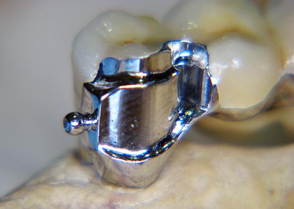 Часть замка находится на коронке, устанавливаемой на зуб.