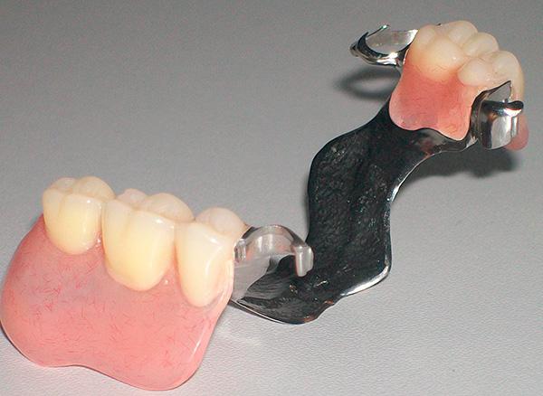 Так выглядит бюгельный протез на замках (на верхнюю челюсть).