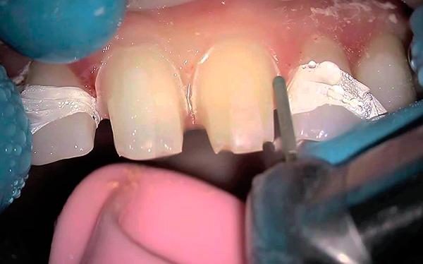Существенным недостатком бюгельного протеза на замках является необходимость обточки опорных зубов под коронки.
