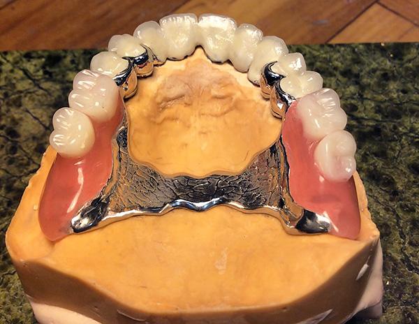 На фото показан пример готового бюгельного протеза, установленного на модели верхней челюсти пациента.