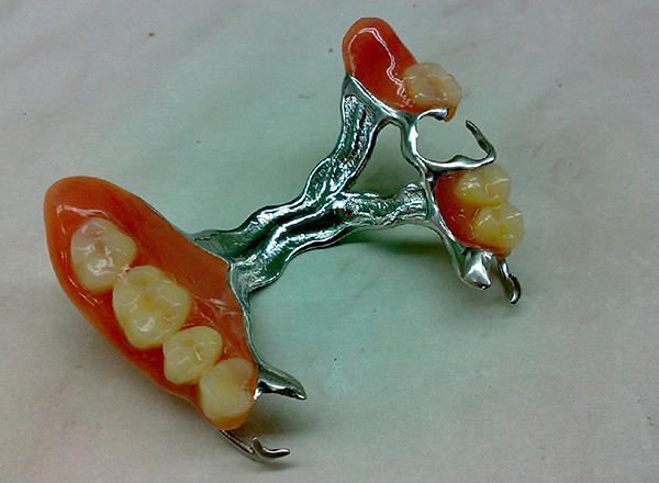 Бюгельный протез на верхнюю челюсть.
