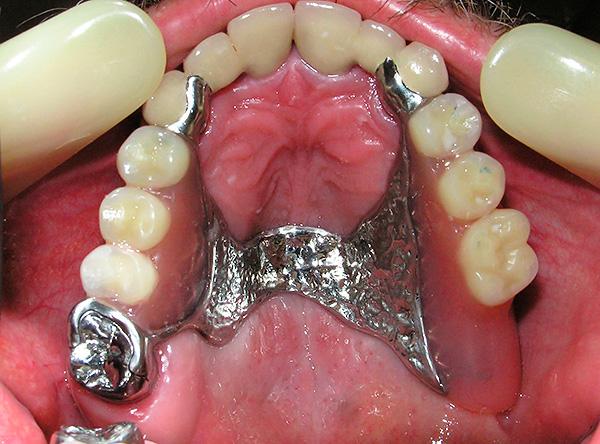 В ряде клинических случаев бюгельное протезирование может стать весьма неплохим вариантом восстановления эстетики и жевательной функции.