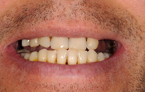 Множественные дефекты зубного ряда (особенно концевые) являются одним из показаний к установке бюгельного протеза.