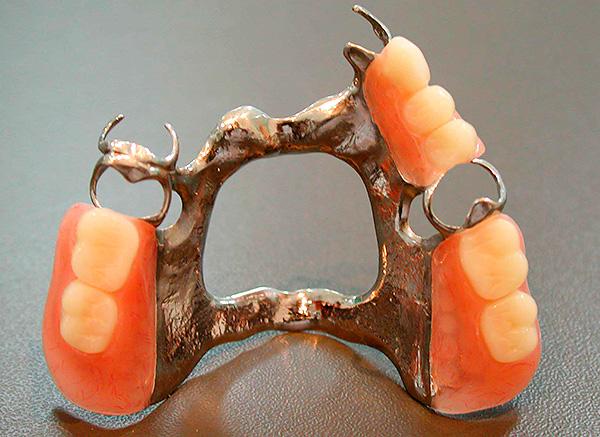 В редких случаях пластиковые и металлические элементы протеза могут вызывать аллергическую реакцию со стороны слизистых полости рта.