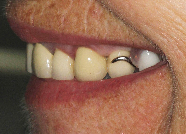 К сожалению, в отдельных случаях крепления бюгельного протеза видны при улыбке.