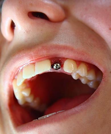 На фото показан пример установки импланта Альфа БИО в эстетически значимой зоне при потере одного зуба.