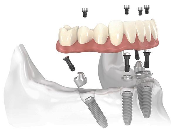 Схема реализации протезирования зубов All-on-4.