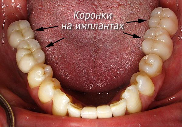 Протезирование жевательных зубов на имплантах Альфа БИО