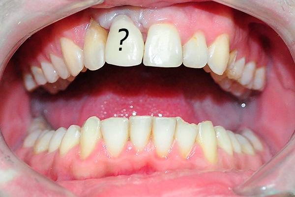 При недостаточной гигиене полости рта может начаться воспаление в области установленного имплантата.