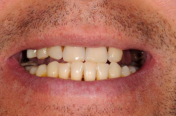 На фотографии показано состояние зубов пациента до лечения с протезированием на имплантах.