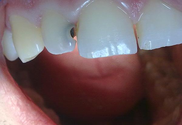 Главное - не использовать обезболивающие препараты как альтернативу посещению стоматолога.