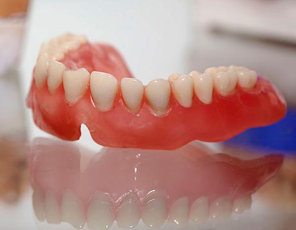 При недостаточном уходе за протезом на акриловой пластмассе довольно быстро образуется бактериальный налет.