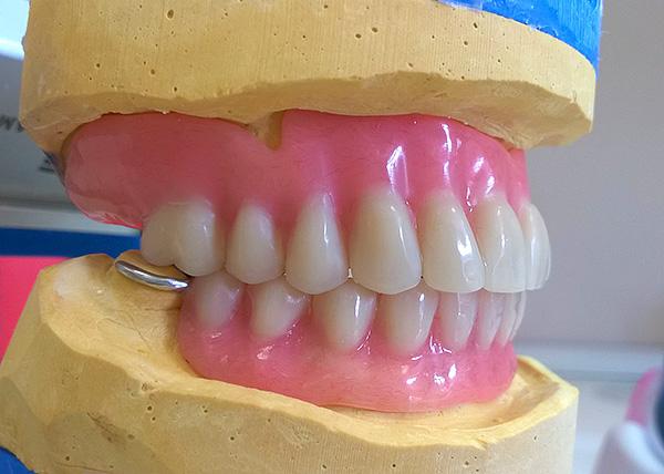 Так выглядит готовый акриловый протез на гипсовой модели челюсти.