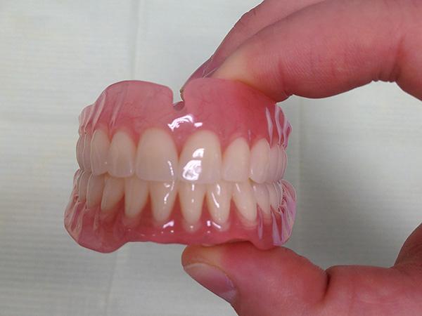 На фото показан полный съемный акриловый протез на верхнюю и нижнюю челюсти.