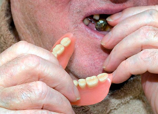 Именно акриловые протезы в народе иногда называют вставными челюстями.