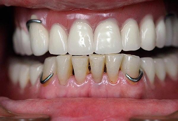 Металлические крючки - это и есть кламмеры акрилового зубного протеза.