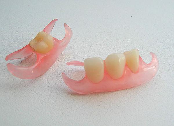 Так называемые протезы-бабочки тоже зачастую изготавливают из акриловой пластмассы.