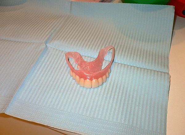 Нейлоновый зубной протез на верхнюю челюсть.