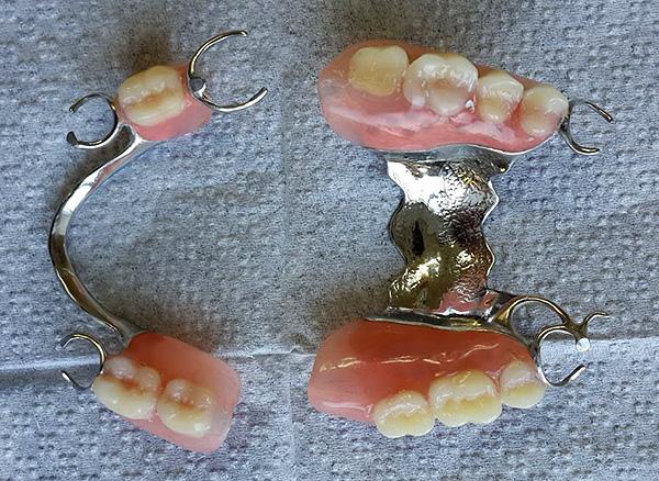 На фото показаны примеры бюгельных протезов на нижнюю и верхнюю челюсти.