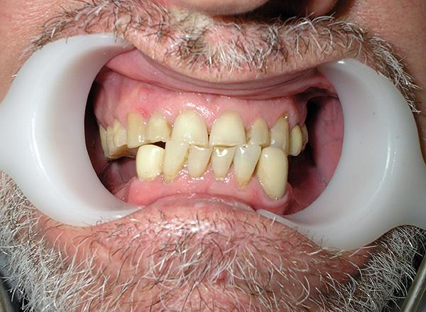Чем быстрее будет произведено протезирование отсутствующих зубов, тем будет меньше риск нежелательных последствий для всей зубочелюстной системы.