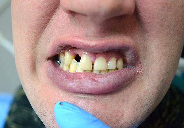 Так выглядели зубы пациента до использования протеза-бабочки...