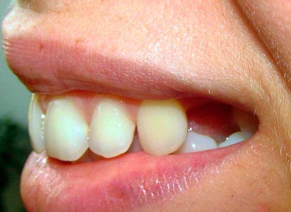 Фото до протезирования удаленного зуба...