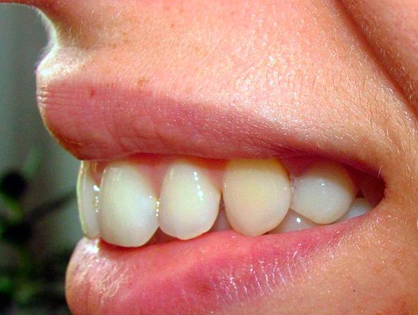 А на этой фотографии показано состояние зубов после использования протеза-бабочки.