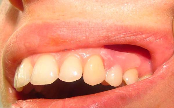 Восстановленный протезом зуб практически неотличим от родных зубов пациента.