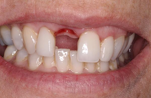 Для большинства людей особенно неприятной является потеря передних зубов, и протез-бабочка в этом случае будет как нельзя кстати.