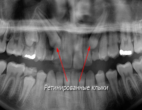На данном рентгеновском снимке хорошо видны ретинированные клыки.