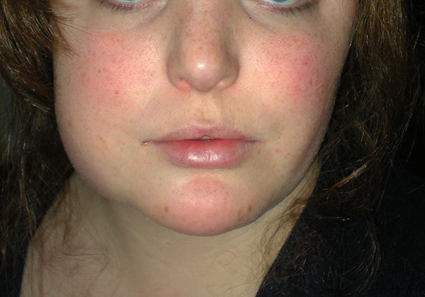 При тяжелых воспалительных процессах ретинированный зуб лучше удалить.