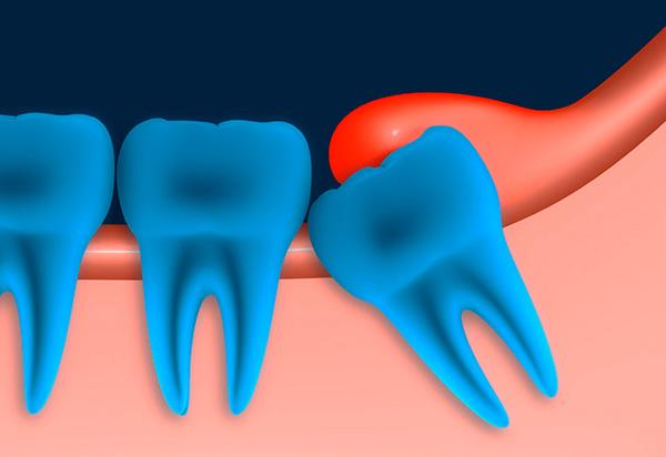 Нередко над частично прорезавшимся зубом мудрости формируется десневой капюшон - его воспаление может создать предпосылки для удаления восьмерки.