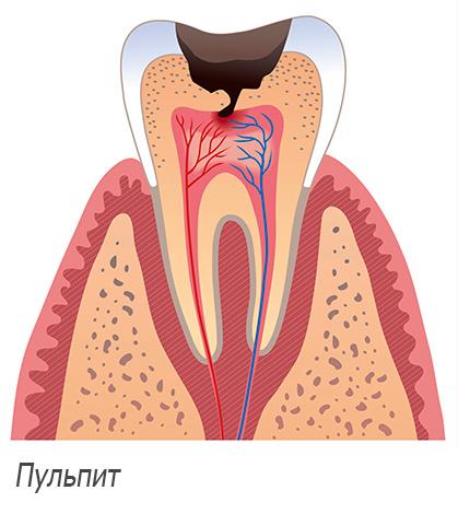 На картинке схематично изображен пульпит зуба