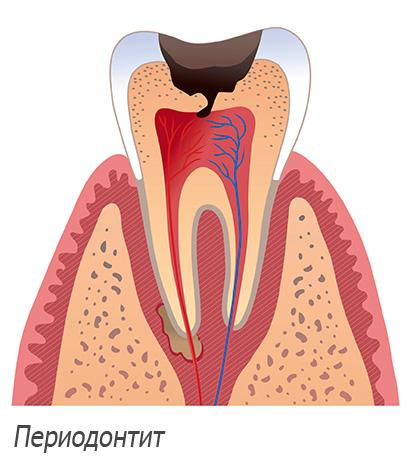 Могут ли удалить сразу 2 зуба мудрости