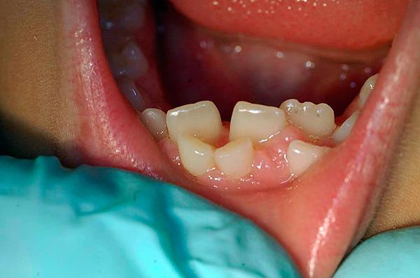 Если постоянные зубы уже прорезались, а молочные при этом не выпали сами, то с высокой вероятностью их придется удалить.