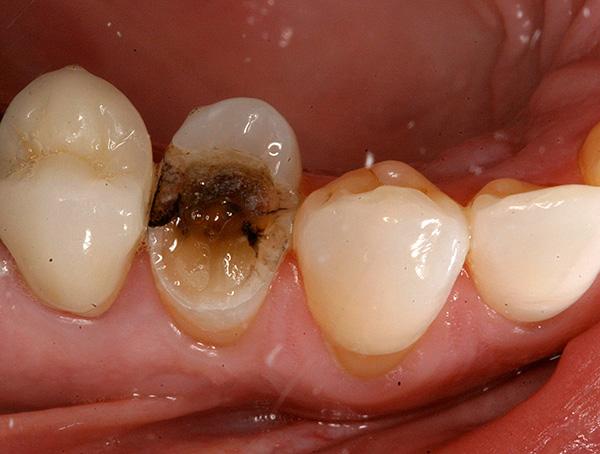Часто бывает так, что при попытке ухватить щипцами зуб, его разрушенная кариесом коронка с хрустом крошится и ломается.
