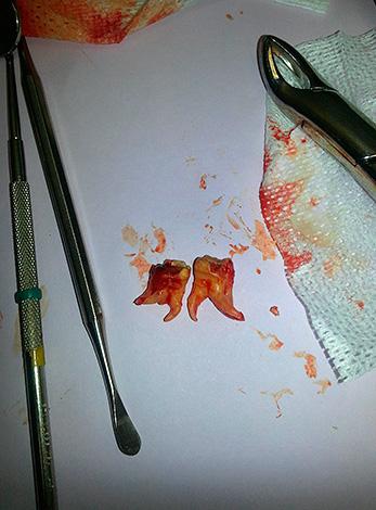 Обстановка в кабинете стоматолога-хирурга в городской поликлинике иногда бывает довольно устрашающей.
