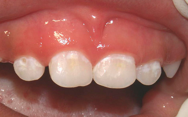 Поговорим о кариесе в стадии так называемого белого пятна и современных подходах к его лечению...
